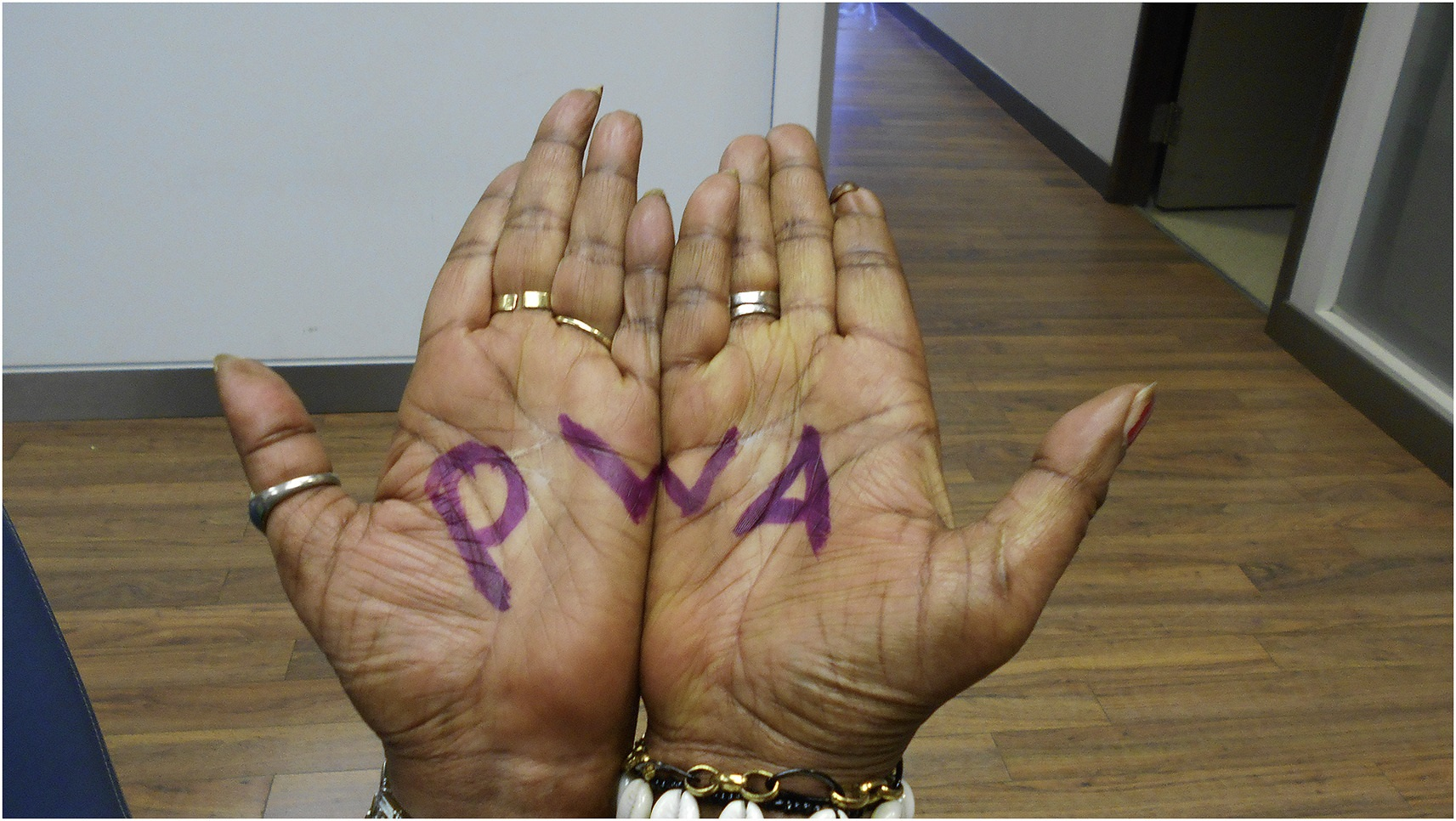 hands with PWA written on palms