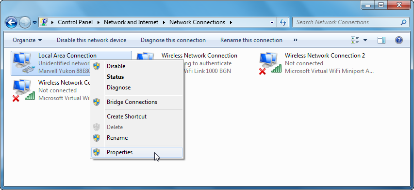 Screenshot of local area connection window